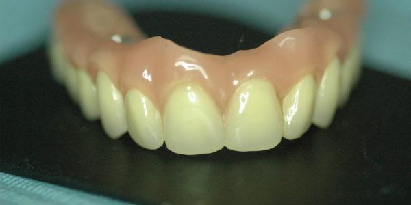 Visión de la «encía artificial» que permite ocultar el inicio de la dentadura