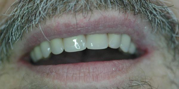 Aspecto natural de la prótesis en boca